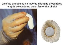 Cimento ósseo