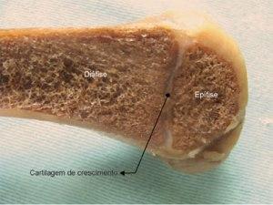 epifise imagem do tecido osseo