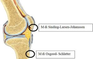 osteocondrites do joelho e tibia