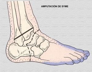 AmputaçãoSyme