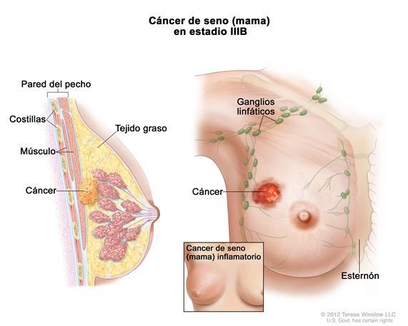 Inhibidores utilizados para carcinoma de mama