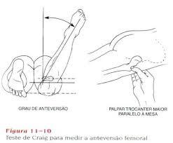 goniometria quadril