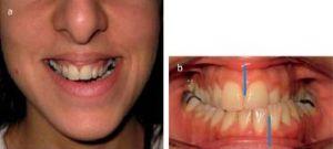 desvio lateral da mandibula