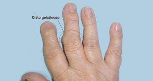 Osteoartrose 13