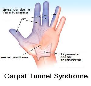sindrome-tunel-carpo