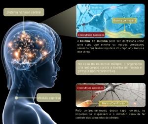 esclerose-multipla-infografico