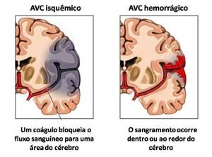 avc_tipos