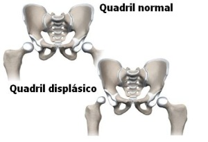 quadril dispasico