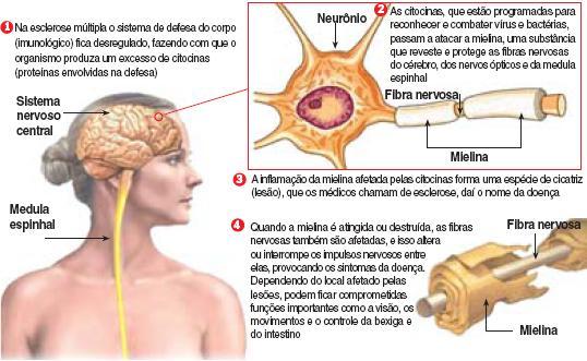 descobrindo_esclerose