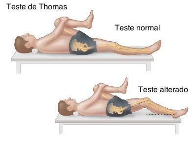 Teste-de-Thomas1