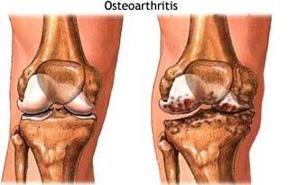 oa_osteoartrite