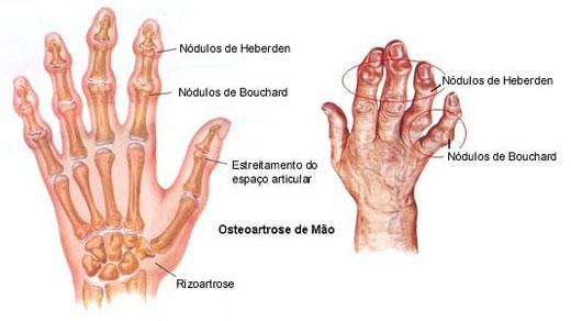 mao reumatoide