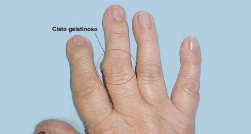 mao reumatoide2